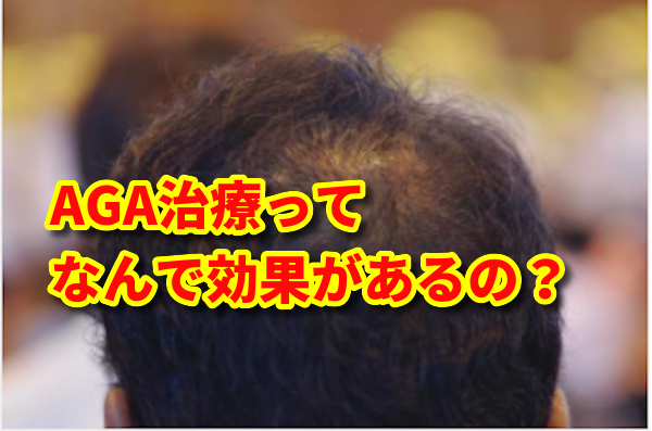 AGA治療の効果、薄毛の原因